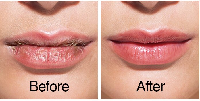 before and after lip care