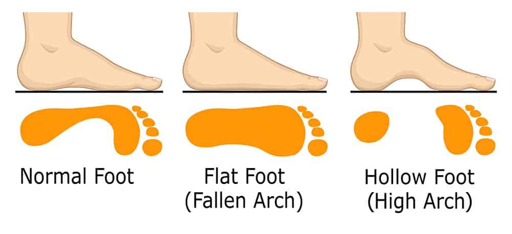 women with high arch, flat and wide feet